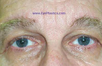 Pre-Operative photograph: Brow Ptosis, excess skin: 1 month